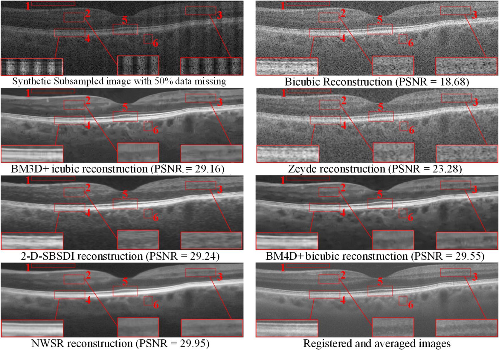 Optical coherence tomography retinal image reconstruction